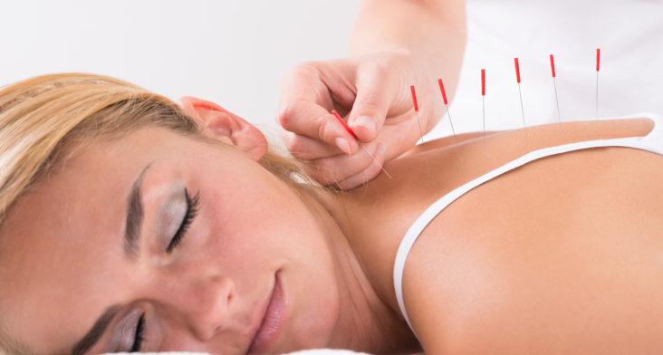 Beneficios de la acupuntura en la reproducción asistida
