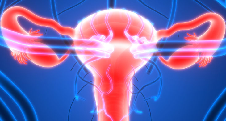 Síndrome de ovarios poliquísticos: droga anticáncer ayuda a aumentar la fertilidad de las pacientes